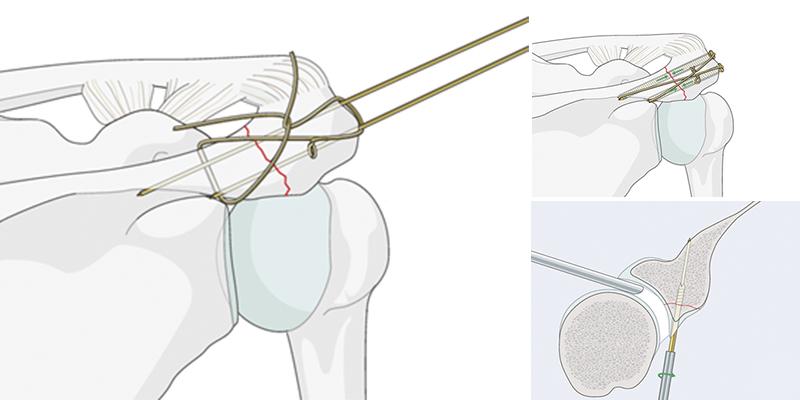 Остеосинтез при переломах нижней (дистальной) части плеча