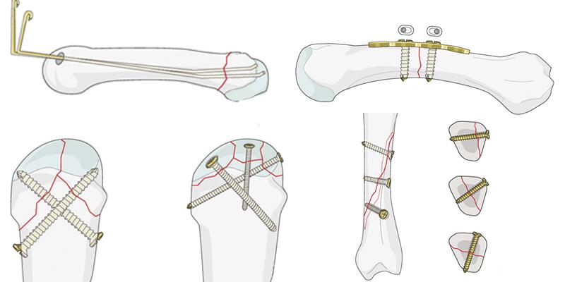 Остеосинтез при переломах пястных костей