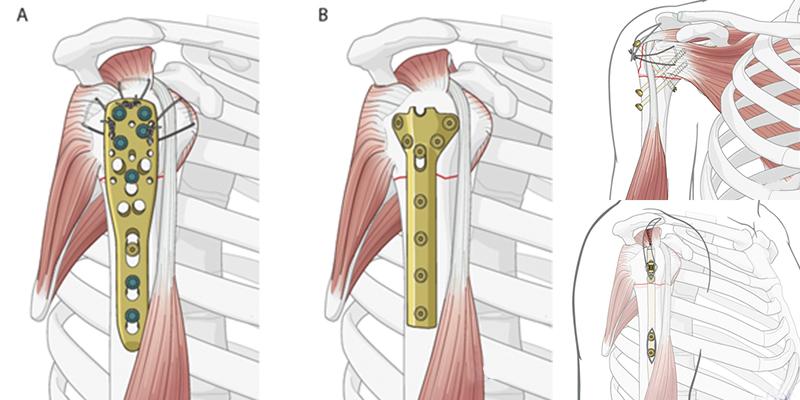 Остеосинтез при переломах верхних конечностей