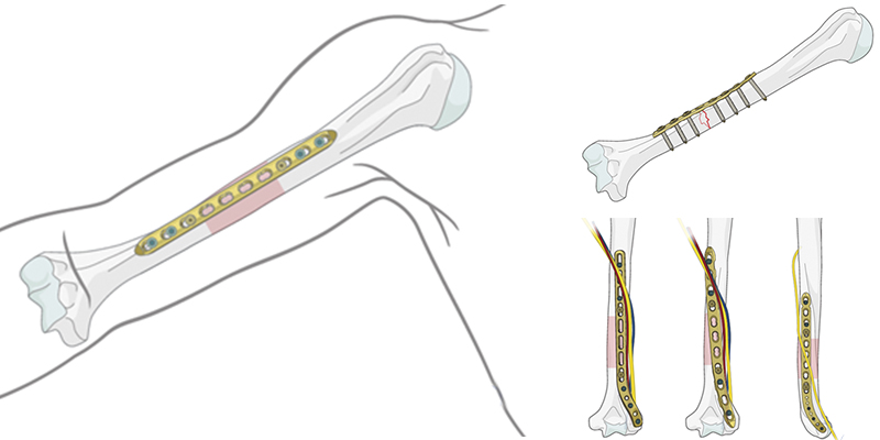 Остеосинтез при переломах плечевой кости