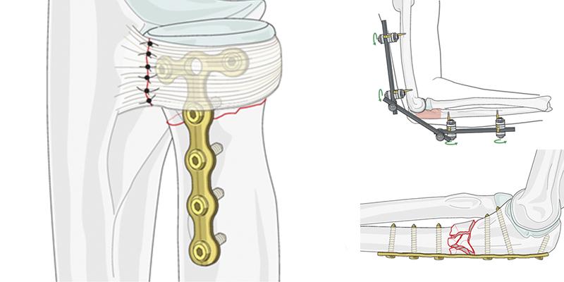 Остеосинтез при переломах предплечья