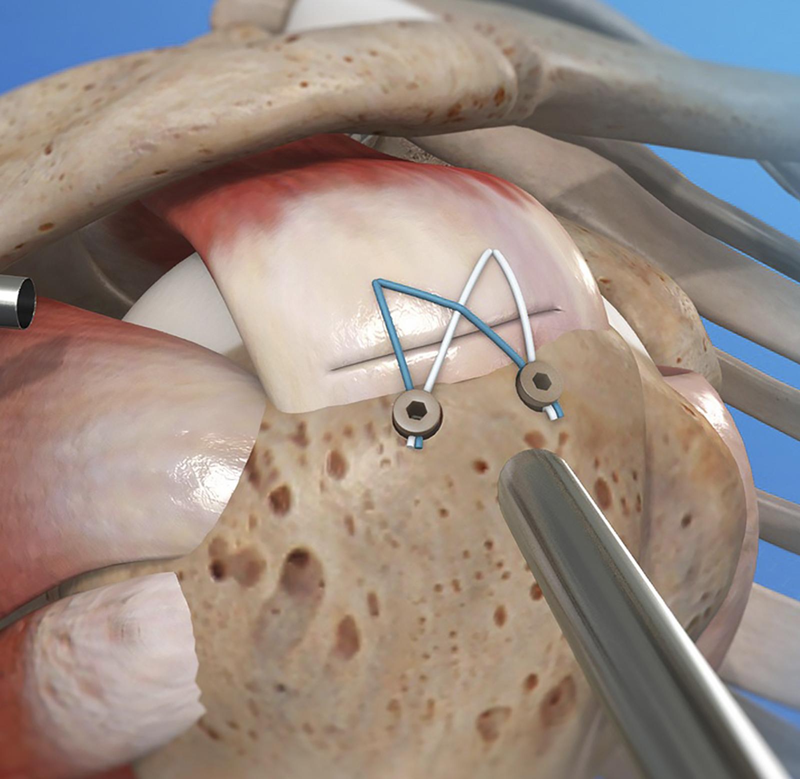 Артроскопический шов ротаторов плеча