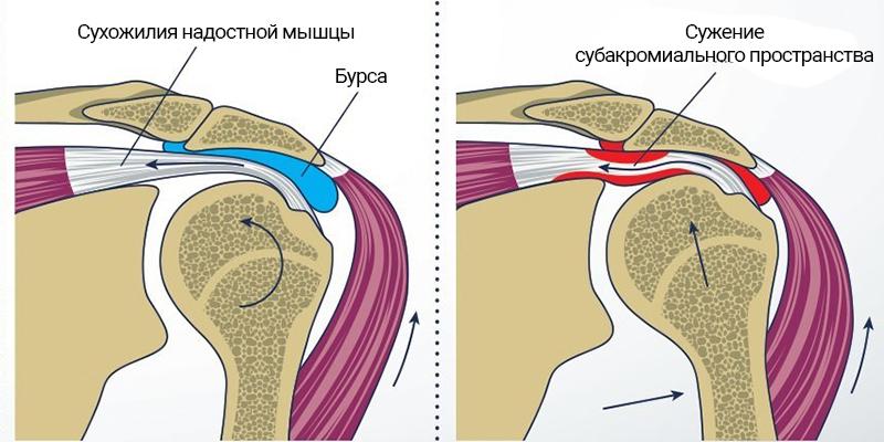 Артроскопическая субакромиальная декомпрессия