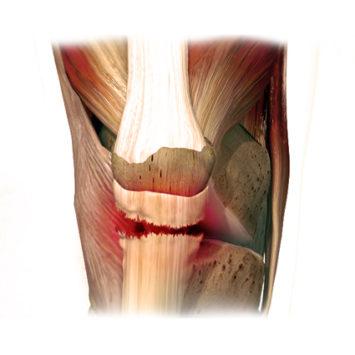 Операции на сухожилиях