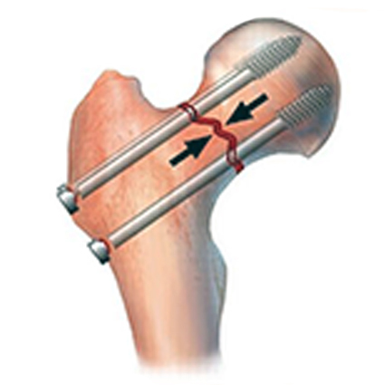 Остеосинтез при переломах